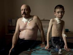 Chernobyl's Cancerous Shadow  Photograph by Gerd Ludwig    More than 20 years later, the catastrophe of the Chernobyl nuclear reactor explosion isn't over for Oleg, 54, and Dima, 13. The two are recovering from thyroid surgery at a medical facility in Belarus. Since world's largest nuclear disaster in 1986, cases of thyroid cancer have exploded, afflicting thousands who could not afford to relocate. UN estimates that 7 million people still live on radioactive land contaminated by the explosion.