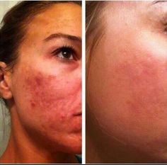 More Amazing Real Results! www.wrinkleresults.nerium.com or email me at bestskin4ever@gmail.com