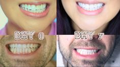 How to Whiten Teeth At Home - Stained Veneers and All with Customize Whitening Tray for Less. Smile Brilliant   http://www.lisapullano.com/2014/03/how-we-whiten-our-teeth-at-home-stained.html