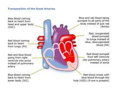 This is the Congenital Heart Defect that I have.