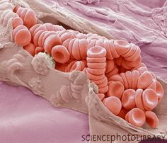 Ruptured venule. Coloured scanning electron micrograph (SEM) showing stacks (rouleaux) of red blood cells exposed inside a torn venule. A venule is a very small blood vessel in the microcirculation that allows deoxygenated blood to return from the capillary beds to the larger blood vessels (veins). Red blood cells are the most abundant cell in the blood. They have no nucleus and are about 7 micrometers across. Magnification: x2300 when printed at 10 centimetres wide.