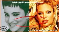 Undoubtedly, breast augmentation is Sabrina Sabrok plastic surgery most striking of this singer, but not the only one. Sabrina Sabrok plastic surgery Although not seem the same woman, this is Sabrina Sabrokbefore and after shows that besides having operations in her body, her face has been