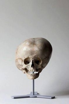Hydrocephalic skull, 19th century.