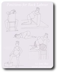 Birthing positions for back labour