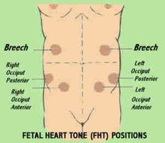 Fetal Heart Tone Positions: Repinning because I miss these EVERY SINGLE TIME on my NCLEX practices.