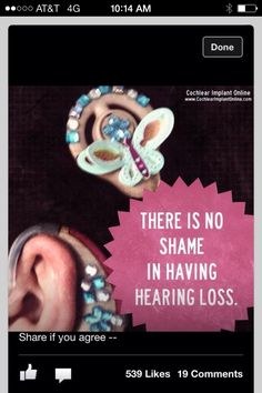 Almigal says you should be proud of your cochlear implants and hearing aids!