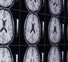 cannabis, diseas, cannabi god, endocannabinoid system, del cerebro
