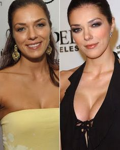 Adrianne Curry Breast Implants