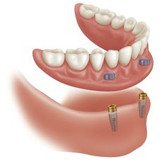 Full or partial dentures are often the most cost effective way to replace missing teeth. Learn about dentures prices, types, benefits, disadvantages, and more.