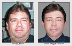 This is an example of fat to thin, extereme makeover. Editing photo to make subject thinner.   http://www.freephotoediting.com/samples/look-slimmer/006-make-over-weight-man-look-thin.htm