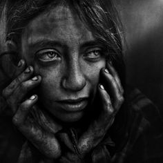 Lee Jeffries career began as a sports photographer, capturing the beautiful game of football in Manchester, UK. Then a chance meeting with a homeless woman living in the streets of London changed his life forever. He has since dedicated himself to capturing gripping portraits of the disenfranchised.    The models in his photographs are homeless people that he has met in Europe and in the United States.