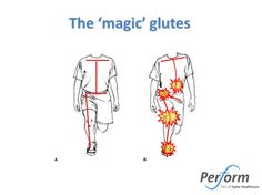 The Magic Glutes (Part 1) | The Sports Physio. Glut med is a key muscle in restoring function, decreasing joint stress and injury prevention.
