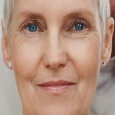 Effective Home Remedies For Eye Wrinkles