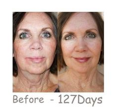 When will you be ready to try it?  Visit my website at: www.wrinkleresults.arealbreakthrough.com