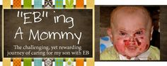 angel, prayer, parents, mothers, heart, epidermolysi bullosa, babi tripp, child life, blog