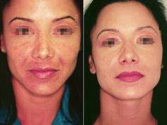 I advise to visit this link. You can restore youth without plastic surgeon!