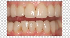 Orthodontics and Mirage Veneers : Kristen Williams wanted  to correct the overlap of the front teeth, the crowding, the dark color of her teeth. Kristren  before her orthodontic analysis and bite/smile makeover, told us she wanted the uneven heights of the upper and lower teeth corrected so that her new smile would be balanced and attractive. She wanted the color whiter, the shape of the chipped and worn teeth more natural in shape also.Orthodontics for less than one year put her in the ball ...