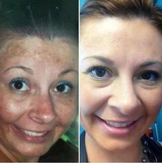 Rodan and Fields Reverse regimen!! After only 6 months of use!!  Contact Amy to order - (404) 218-7709 or www.spicherskincare.myrandf.biz
