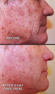 WOW!! Nerium AD is a skin care dream!!  http://kelleeablard.nerium.com/