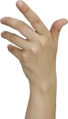 Hand exercise after a stroke