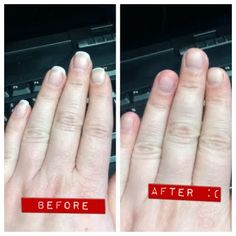 how to stop skin picking on fingers