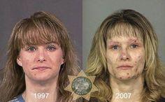 Bersama: Faces Of Meth Addicts