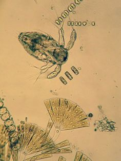 A copepod with marine diatoms.