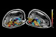 Brain Abnormalities Discovered in Patients With Chronic Fatigue Syndrome | IFLScience