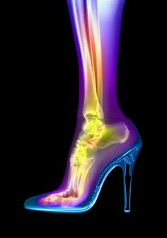 High-heeled shoes may look good, but what are they doing to your feet? Read about the problems caused by heels.
