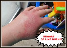 A co-worker of mine got 2nd degree burns from lime juice and the sun. Read