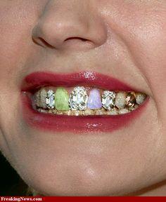 Precious stone teeth.  Why? Why?