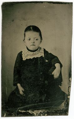 An extremely rare tintype of a young girl with what I believe is either Apert Syndrome or Crouzons. This condition was not even officially described until decades after this photo was taken (1870s). If you look closely at her hands, you can see they are oddly formed, most likely with fused fingers.