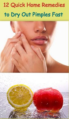 http://tipsongettingridofacne.com/ has some tips and advice on ridding one's skin of acne.