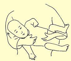 Stretches and positioning for Right Torticollis
