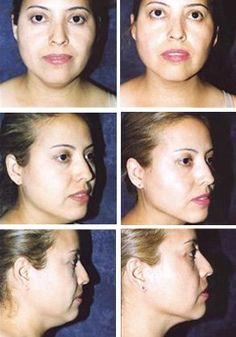 Tone and tighten all the skin on the face neck with simple-to-learn facial workouts. Double chin yoga exercises can sharpen the jaw area and give one a slimmer, defined appearance http://www.facelift-without-surgery.biz/face-lifts-how-to-look-younger-without-surgery.html