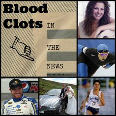 Blood Clots in the N