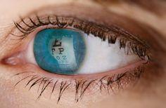 Sarı Noktadan Hastalığından Gözlerinizi Koruyun    Göz arkasındaki retina dokusunun merkezi olan sarı nokta bölgesindeki hastalıklar (makula veya sarı benek hastalığı) son zamanlarda çok sıkla görülmektedir.    Sarı benek hastalığının en sık nedeni yaşa bağlı makula dejenerasyonudur.