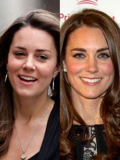 Before and After--Catherine, Duchess Of Cambridge