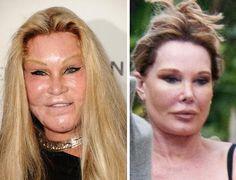 "plastic women | Jocelyn Wildenstein ""Cat Woman"" Before & After Plastic Surgery"