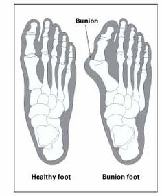 Normal Left, Bunion Right