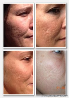 NeriumAD is remarkable on healing skin with texture issues!!  www.ronya.nerium.com