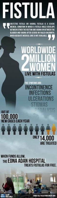 Learn more about fistulas and what you can do to make a difference with this Half the Sky infographic. Did you know, worldwide there are 2 million women living with fistulas?