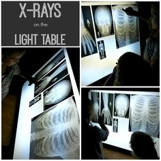 X-rays on the light table - learning about the skeletal system.