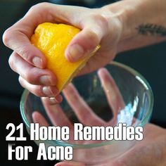 21 home remedies for acne