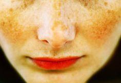 Aclarar manchas en la piel, Remedios Caseros