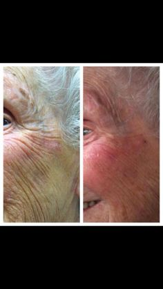 53 days using Nerium