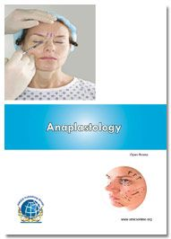 Anaplastology is an Open Access scientific journal which is peer-reviewed. It publishes the most exciting researches with respect to the subjects of Anaplastology development and their diagnostic applications. This is freely available online journal which will be soon available as a print.