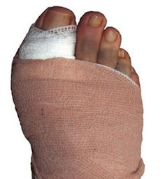 Some Useful Guide for Bunion Surgery