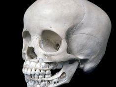 Children's Skulls Encircled Some Bronze Age Lake Villages