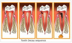 Tooth Decay Sequence